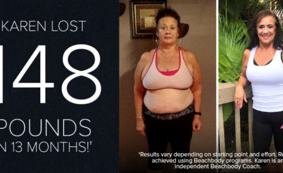 Karen Lost 148 Pounds at 62